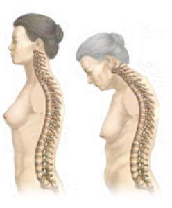 osteoporosi chi colpisce